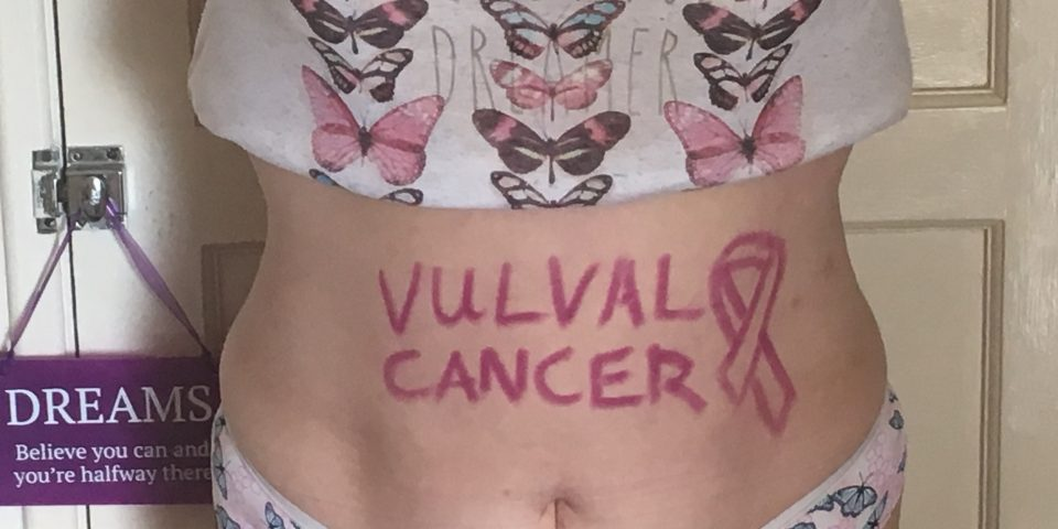 Vulval cancer